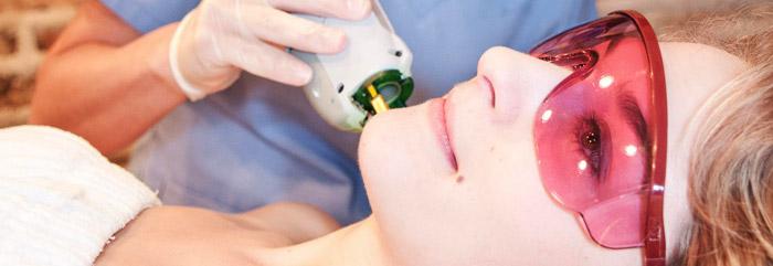 Преимущества лазерной эпиляции волос на лице