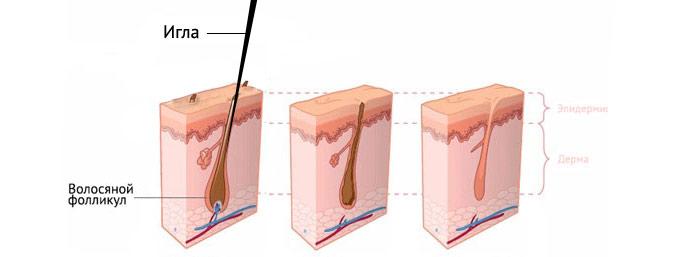 Электроэпиляция или лазерная эпиляция расход кремов при массаже тела