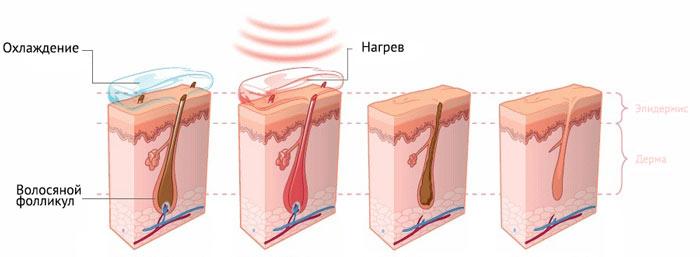 Как действует диодный лазер при удалении волос