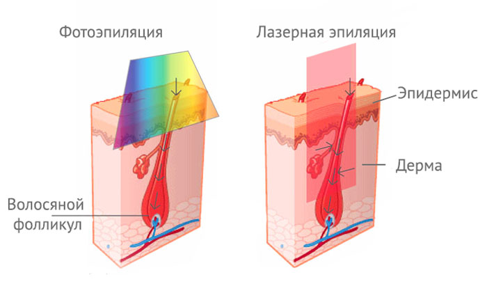 Как действует лазерная и фото эпиляции