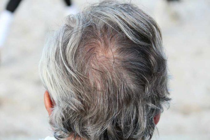 Как лечить выпадение волос у мужчин - народные средства и препараты
