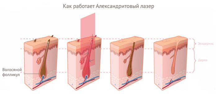 Лазерная эпиляция александритовым лазером