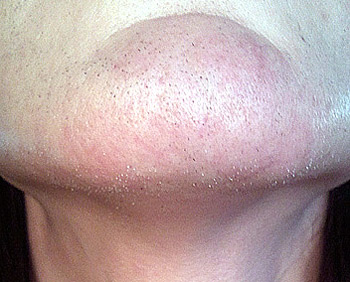 Неправильное проведение электроэпиляции волос