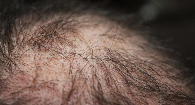 Очень сильно выпадают волосы - что делать