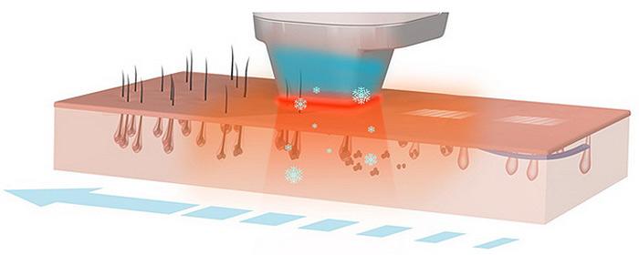 Преимущества лазерной эпиляции диодным лазером
