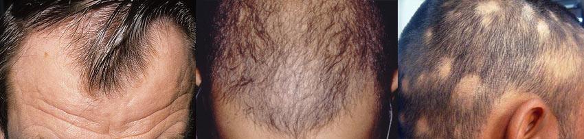 Могут ли от простатита выпадать волосы кинза простатит
