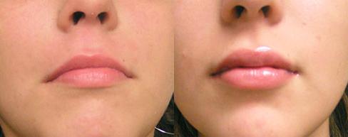 Восстановление после увеличения губ гиалуроновой кислотой: фото