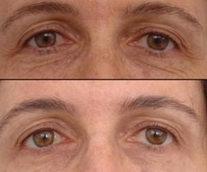 Фотоомоложение кожи лица фото до и после
