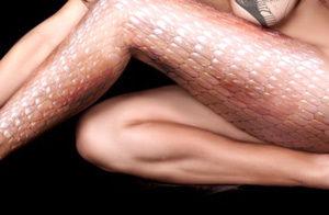 Регулярное травмирование волосяных луковиц