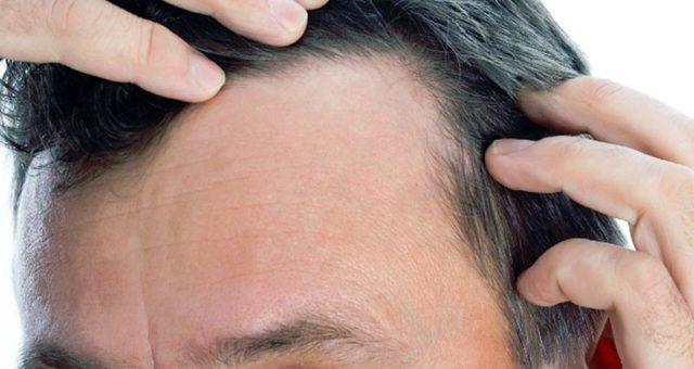 Андрогенная алопеция у мужчин — каковы ее причины и методы лечения