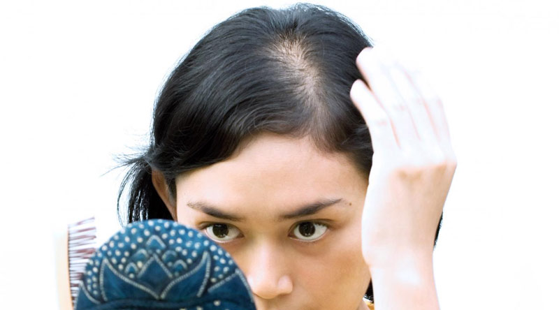 Андрогенная <i>болезни</i> алопеция у женщин