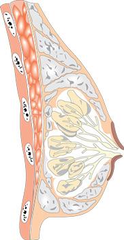 Глубина установки грудных имплантов
