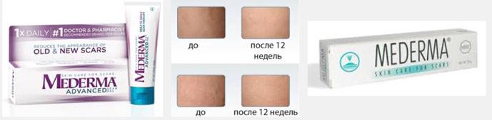 Медерма – популярное средство от растяжек на груди