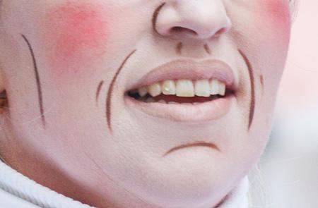 Показание для коррекции носогубных морщин