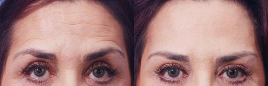 Результаты инъекций - фото до и после