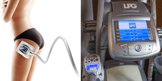 LPG массаж - фото до и после процедуры и отзывы