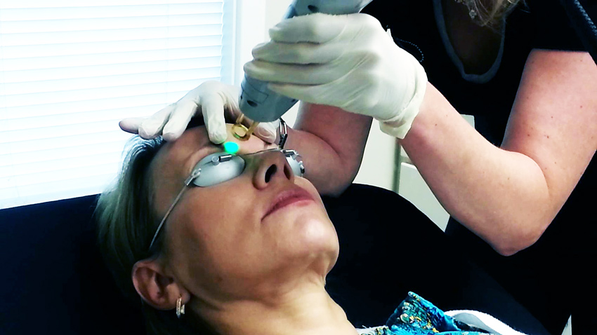 лазерное удаление перманентного макияжа бровей