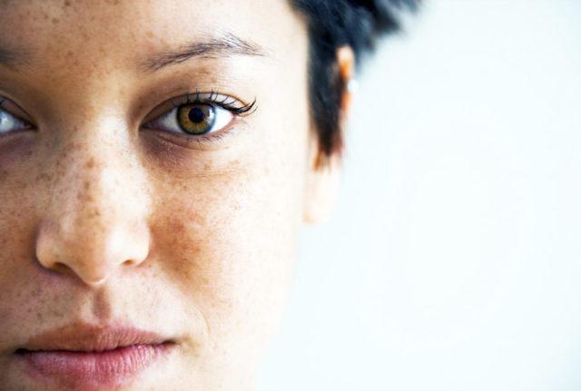 Как избавиться от пигментных пятен на лице в домашних условиях и салоне?