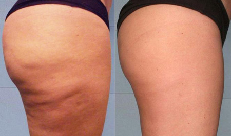 Мезотерапия тела – фото до и после процедуры