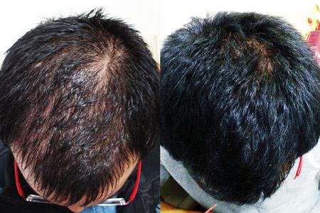 После процедуры (фото до и после)