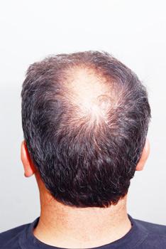 Донорские зоны: откуда забирают волосы для пересадки