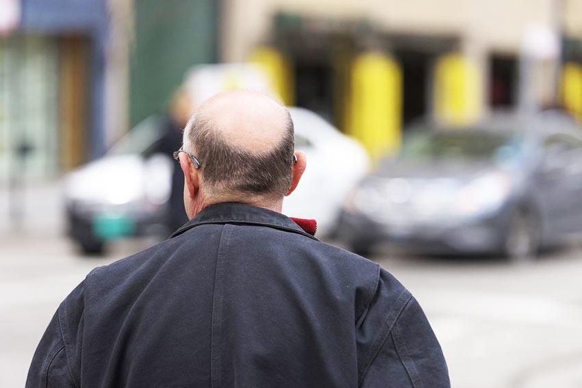 Пересадка волос на голове: когда процедура необходима?