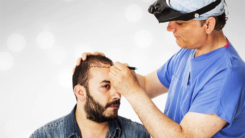 Как происходит пересадка волос и помогает ли она?
