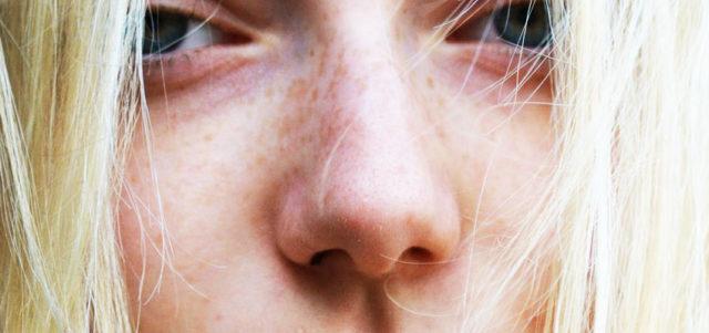Что из себя представляет безоперационная ринопластика носа - фото до и после