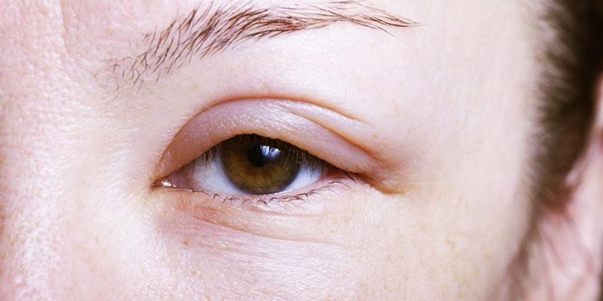 Симптомы ангионевротического отека