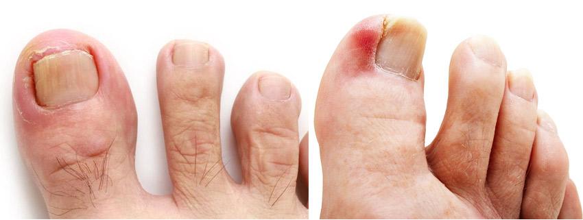 Симптомы вросшего ногтя - фото