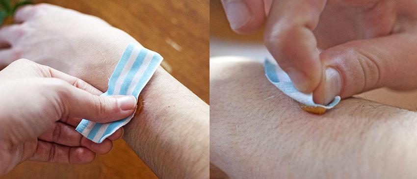 Бандажная техника шугаринга - что это за метод и как им пользоваться в домашних условиях
